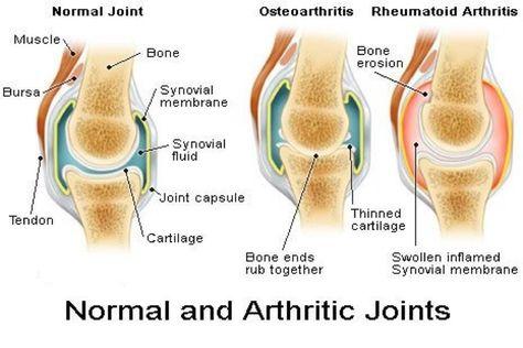 Lutut sering terasa pegal