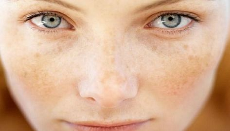 List of Pinterest rosacea on arms home remedies pictures
