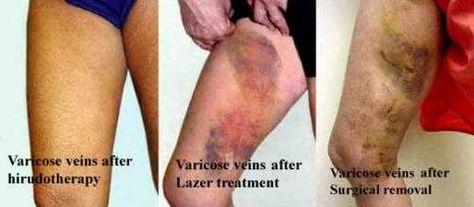 varicoze tratează