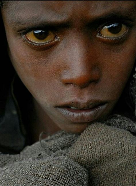 Yellow Sclera African