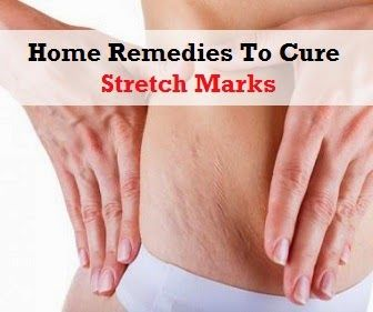 #StretchMarks #remlaserclinic >> http://remlaserclinic.co.uk/