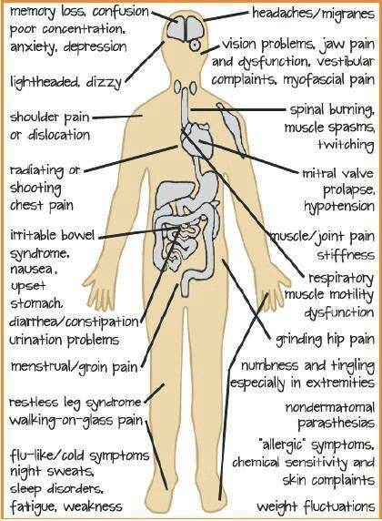 explains a lot of the symptoms with my flare up today, horrid.