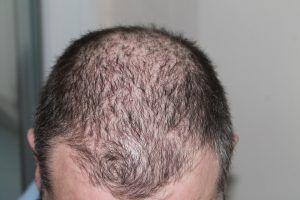 dermatitis seborreica perdida cabello