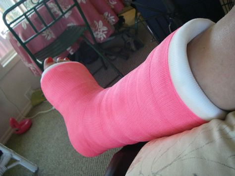 Man I Broke My Leg In 6 Weeks And I Didn T Have A Pink One Pink