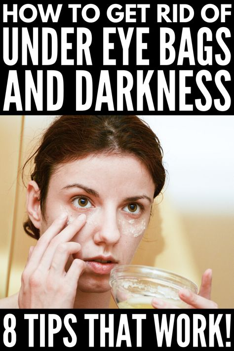 If you're feeling tired and run down, you may also have noticed dark circles under your eyes. A classic sign of fatigue, dark under eye circles can look purple or blue to dark brown or black, dependin Eye Treatment, Natural Treatments, Under Eye Wrinkles, Under Eye Puffiness, Dark Circles Under Eyes, Dark Under Eye, Natural Eyes, Natural Life, Beauty Tips