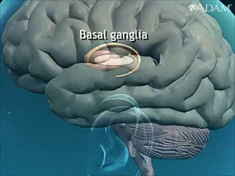 Athetosis resulting from basal ganglia injury