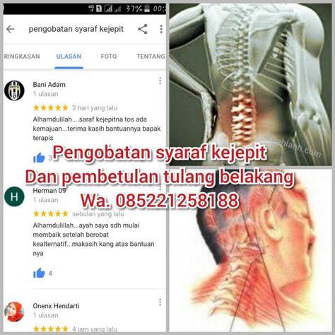 Rheumatoid arthritis prognosis