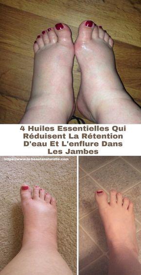 probleme circulatoire pied