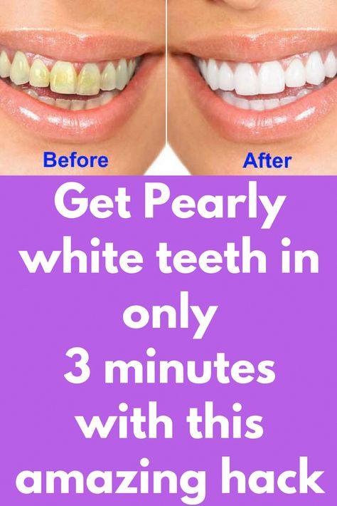 List Of Pinterest Teeth Whitening Baking Soda Lemon Juice Brushes
