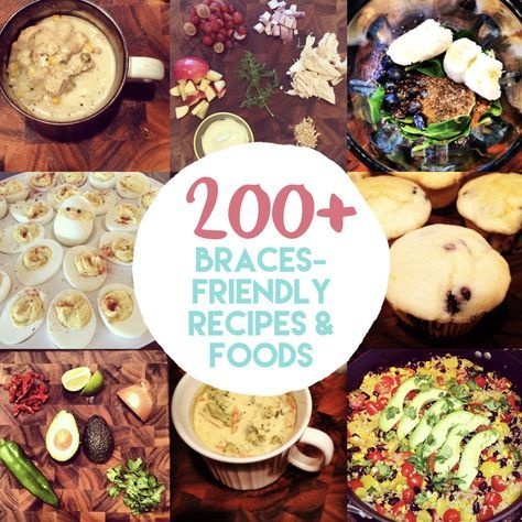 The Ultimate List Of 200 Braces Friendly Recipes Foods Awesome Collection Of Soft Foods You Can Eat With Braces Friendly Recipes Braces Food Soft Foods Diet