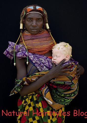 Albino Baby Girl And Her Mwila Mother Angola 3567 Africa
