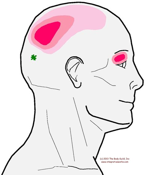Understanding Trigger Points - Headache with Eye pain