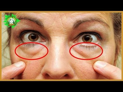 How To Get Rid Of Eye Bags Permanently In 3 Months Naturally! 100% Guaranteed Result! - YouTube