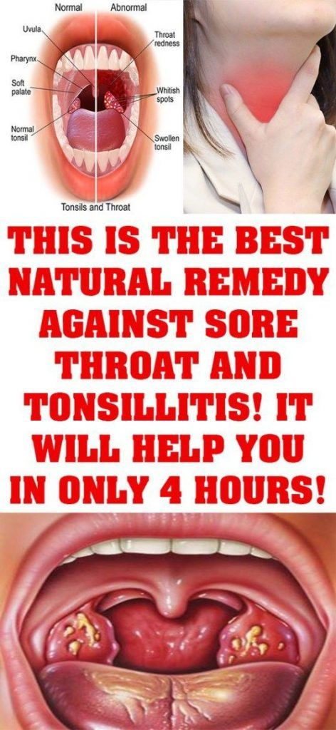 How To Cure Tonsillitis And Sore Throat In Only 4 Hours   Tonsilitis remedy,  Throat remedies, Best sore throat remedies