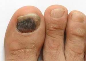 Image result for subungual hematoma""