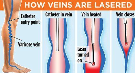 Pin On Leg Vein Treatment