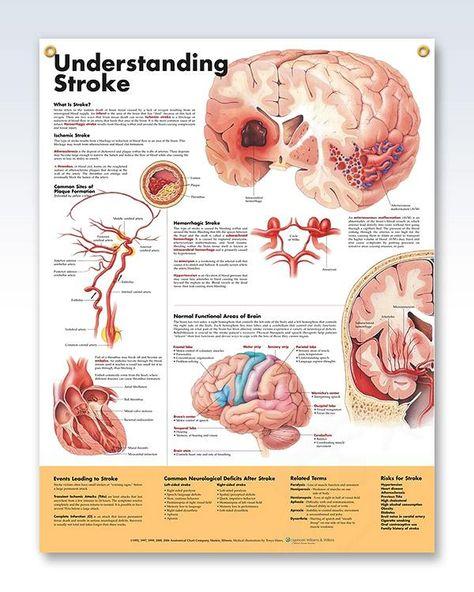 Understanding Stroke anatomy poster with 2 grommets