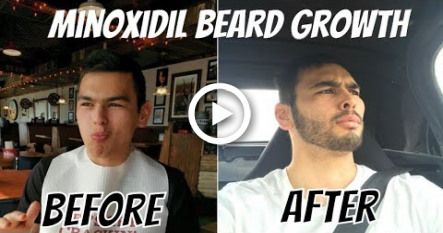 My 1-Year Minoxidil Beard Growth Journey and Side Effects