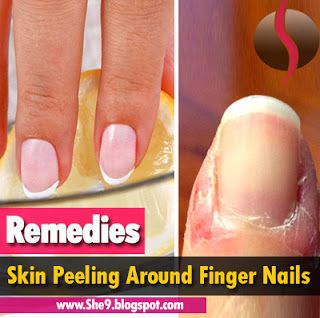 Skin Peeling Around Finger Nails Causes Consequences And 10 Home Remedies She9 Change The Life Style Peeling Skin Peeling Fingernails Dry Skin Remedies