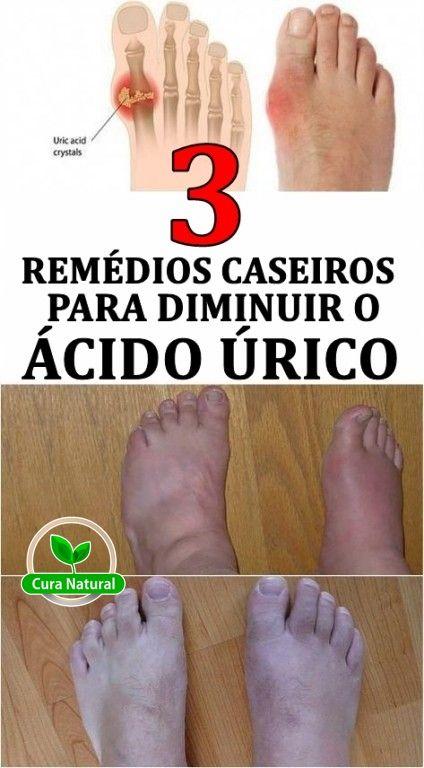 Remedios Caseiros Para Diminuir O Acido Urico Acidourico
