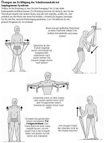 Erfahrungen Mit Schulteroperation Impingement Schulter Impingement Schulter übungen Impingement Schulter Impingement