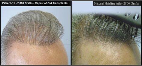 Botched Bad Hair Transplant Google Search Hair Loss Remedies Hair Transplant Reduce Hair Loss