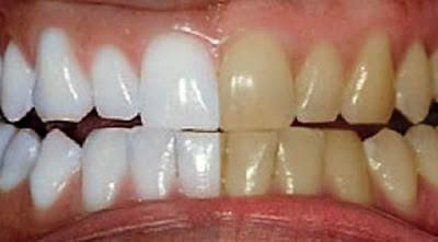 Tratamento Caseiro de clareamento dentário: ift.tt/1rSlvEY