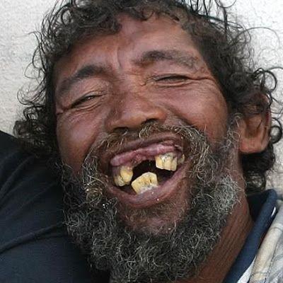 Os Homens Mais Feios Do Mundo Nem Cirurgia Plastica Riso