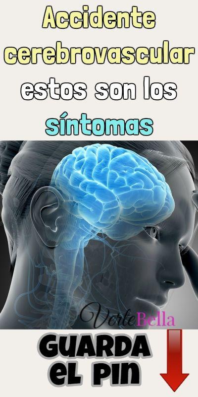 Mareo síntoma de accidente cerebrovascular