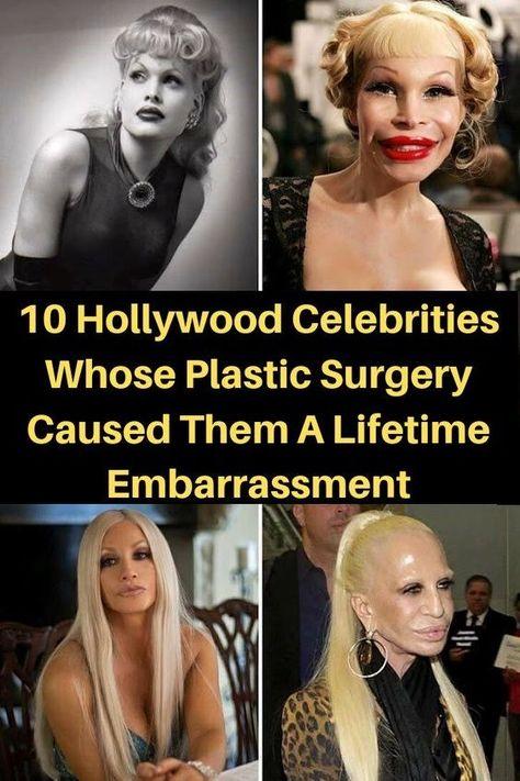 Plastische Chirurgie vor und nach Bildern von Hollywood-Stars, die es bereuen