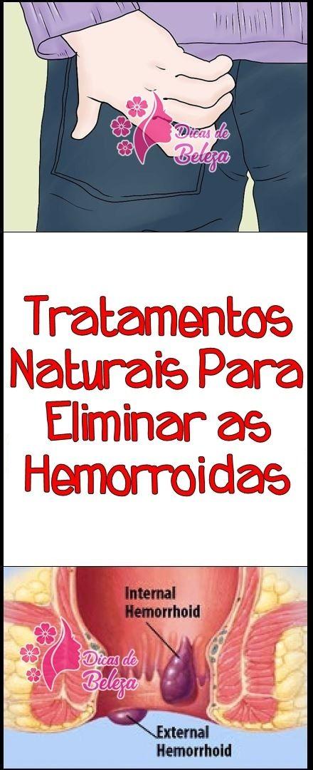 As 10 Remedios Caseiros Para Eliminar Hemorroidas Remedios