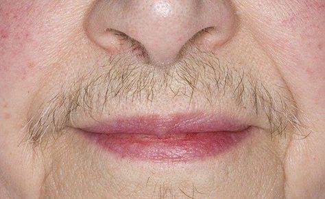 Risultato immagini per women upper lip hair