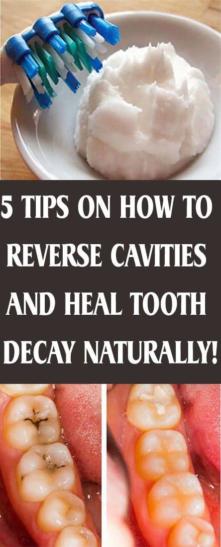5 Tips On How To Reverse Cavities And Heal Tooth Decay Naturally Health Beauty Getrid Howto Exercises Workou Healthy Teeth Reverse Cavities Oral Hygiene