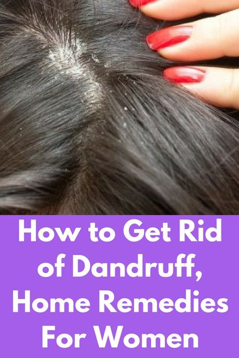 6682fff2e3caf82a5bd4d7e920b50d0a - How To Get Rid Of Dandruff In Baby Hair