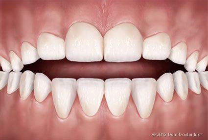 Pin On Best Orthodontist Miami