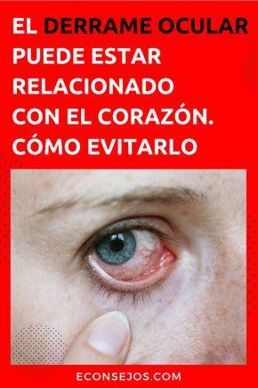 Causas del derrame en el ojo