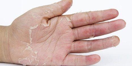 pied peau qui pele