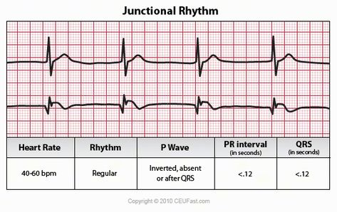 heart rhythm home page - 473×298