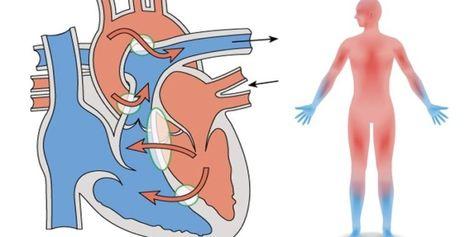 Wo ist die lunge im körper