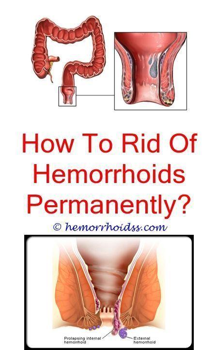 Pin On Hemorrhoids Symptoms
