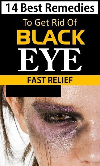 682f24ce5ec02f2fbd7f5f4ceccedcaf - How To Get Rid Of Swelling Black Eyes Fast