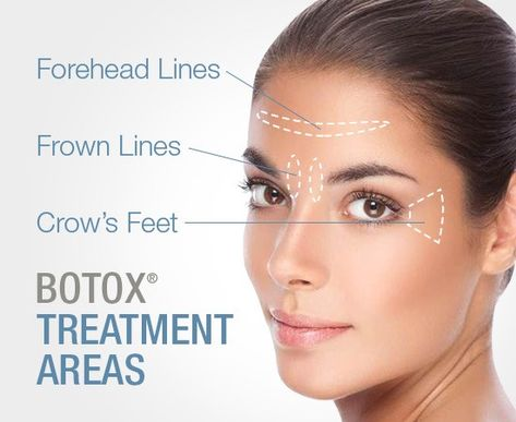 Wondering what Botox can do for you? These are the areas ...