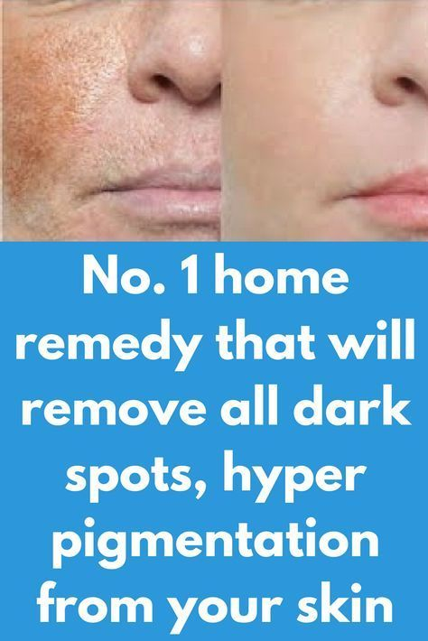 No 1 Home Remedy That Will Remove All Dark Spots Hyper Pigmentation From Your Skin This Super Effe Skin Problems Spots Hyperpigmentation Younger Looking Skin