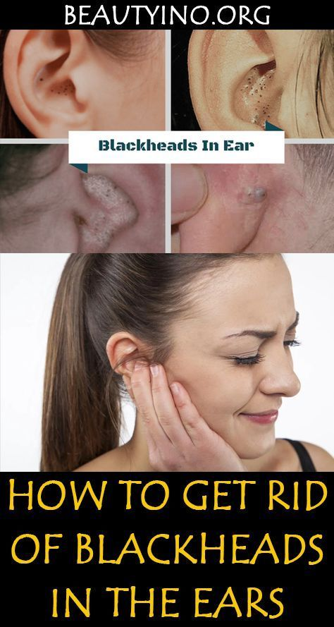 68a0a8a131586e12daaf9bb17482d25c - How To Get Rid Of Acne Blackheads And Oily Skin