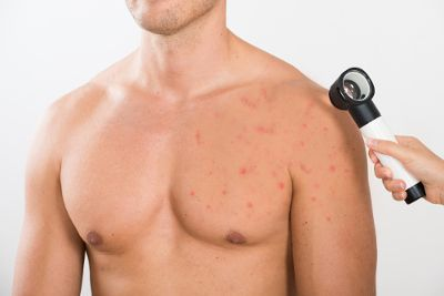 6903fcd762d1abc474078478f2597cfa - How To Get Rid Of Chest Acne And Scars