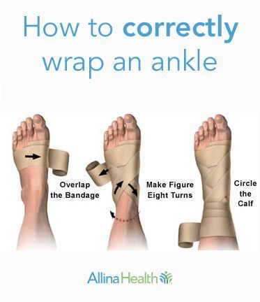 Follow these steps to correctly wrap an ankle. Click to learn more about ankle sprains and how to treat them. #running #dance #anklesprain