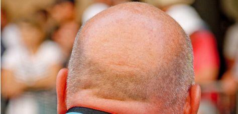 Calvitie : la repousse des cheveux à portée de main