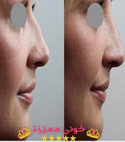 Botox Injection حقن البوتوكس علاج التجاعيد علاج الشعر بالبوتوكس Botox Injections Botox Injections