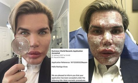 'Human Ken Doll' set to enter record books after 51 cosmetic surgeries