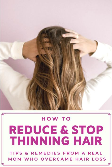 Why Is My Hair Falling Out (and 8 Ways I Stopped it) - Women's Hair Loss Solutions and Remedies